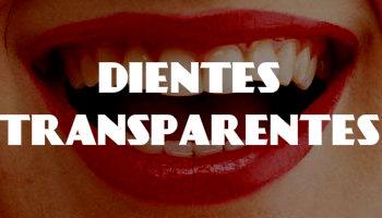 dientes transparentes